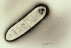 Listeria-monocytogenes_BML